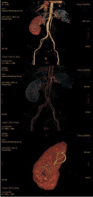 Nefrectomia Asistida con Robot