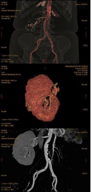Nefrectomia Riñon y Cirugia Robotica
