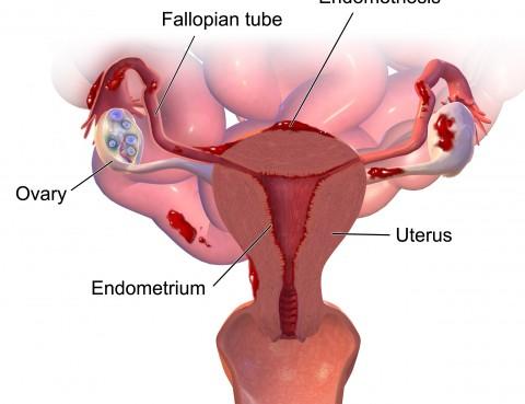 endometriosis y Robotica