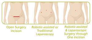 Robotica en Endiometrosis