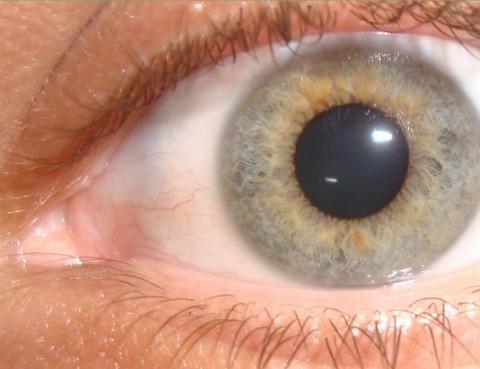 oftalmologia Cirugia Robotica