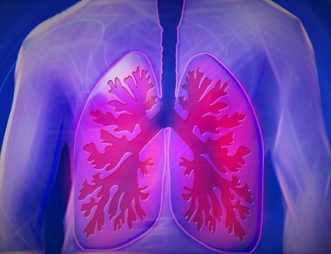 Robotica y Cirugia Pulmon