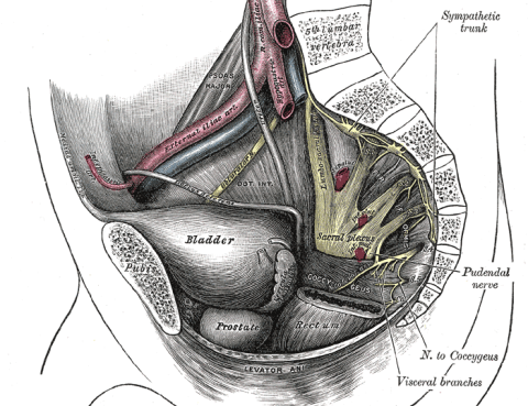 Neurolisis Nervio Pudendo Cirugia Robotica
