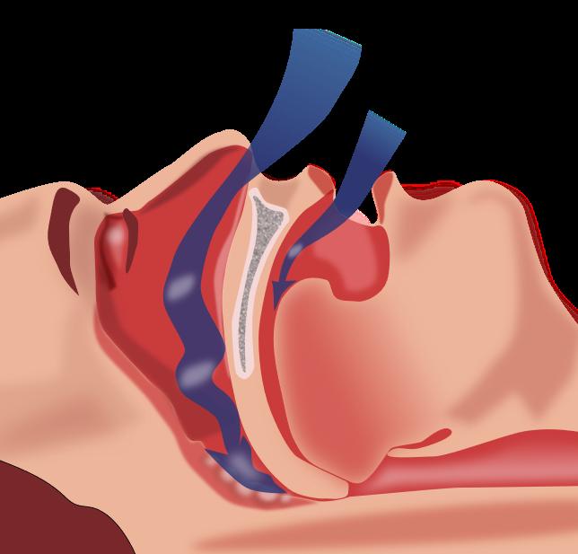 Tratamiento Apnea y Cirugia Robotica