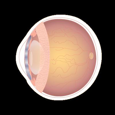 Intervencion Retina Robotica