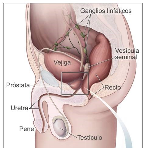 Robotica y cancer de testiculo